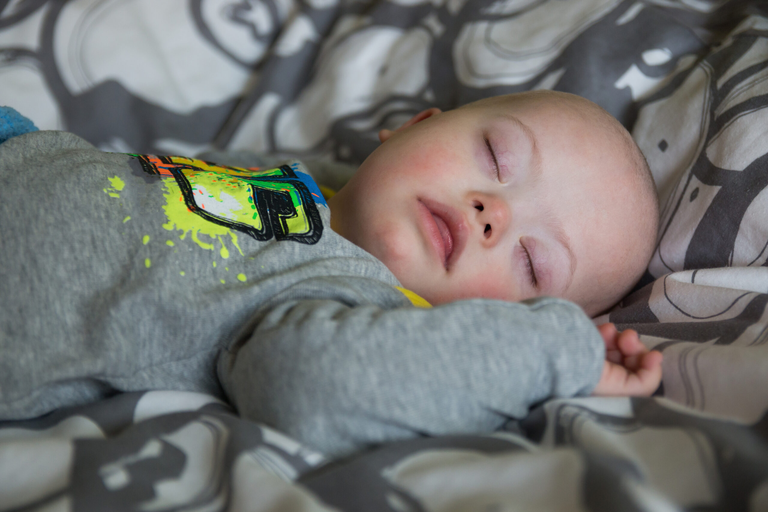 Cute baby boy with Down syndrome sleeping on the bed in home bedroom